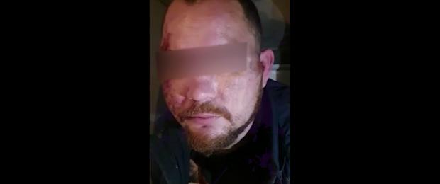 Истринскому педофилу, изнасиловавшему двух девочек в машине, при задержании порвали селезенку